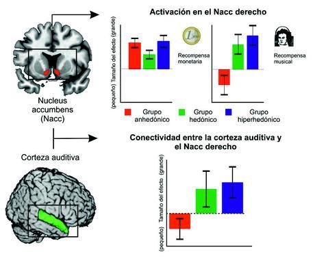 Música y Neurociencia I: La Estructura Cerebral Determina la Emoción de la Música