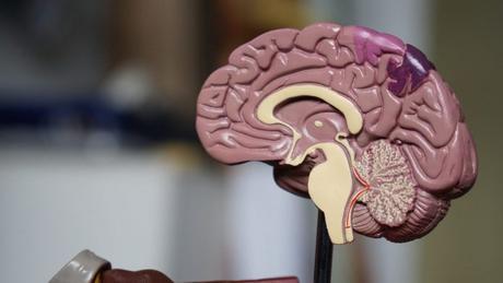 No hay alteraciones de la asimetría cerebral de las personas con depresión