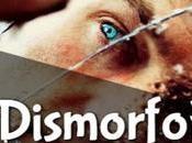 Dismorfofobia Trastorno dismórfico corporal, ¿defectos imaginarios?