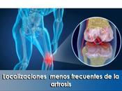 Artricenter: Localizaciones menos frecuentes artrosis.