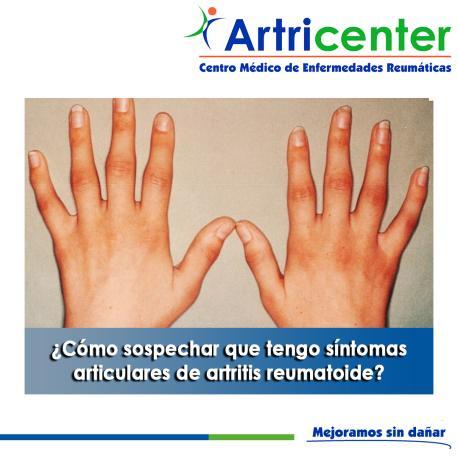 Artricenter: ¿Cómo sospechar que tengo síntomas articulares de artritis reumatoide?