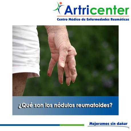 Artricenter: ¿Qué son los nódulos reumatoides?