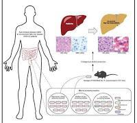 Vinculan las Bacterias Intestinales con el Hígado Graso no Alcohólico