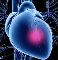 Nuevo esquema de clasificación del Shock Cardiogénico