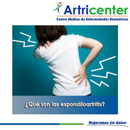 Artricenter: ¿Qué son las espondiloartritis?