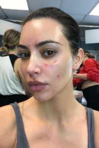 Kim Kardashian mostró fotos de su piel afectada por la psoriasis