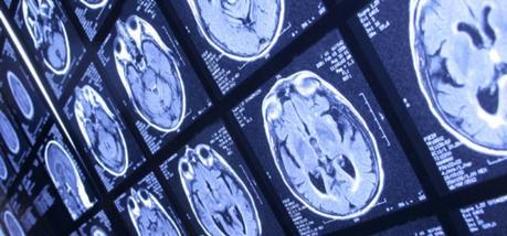 Tipos de neurociencia