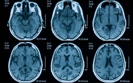Un algoritmo detecta hemorragias cerebrales con más acierto que la mitad de los radiólogos
