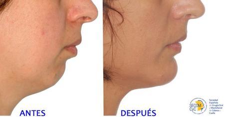 Las cirugías de mentón aumenta entre las mujeres: la mentoplastia