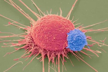 CRISPR/Cas9: laboratorios afirman haber curado pacientes con enfermedades hereditarias de sangre