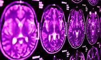 Vinculan genéticamente el autismo y el síndrome de Tourette