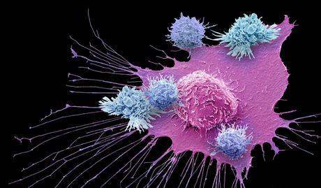 Tasuku Honjo: 'Con la inmunoterapia, es más improbable que el tumor reaparezca'