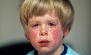 Los movimientos antivacunas y la epidemia de sarampión en Europa