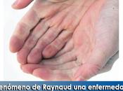 Artricenter: Fenómeno Raynaud enfermedad reumática