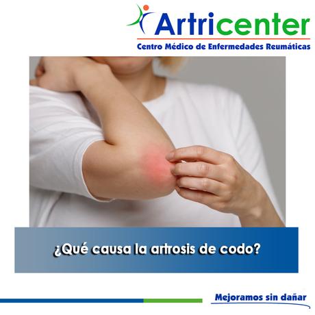 Artricenter: ¿Qué causa la artrosis de codo?