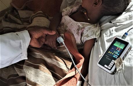 Más de 7000 casos de Sarampión en la Oromía