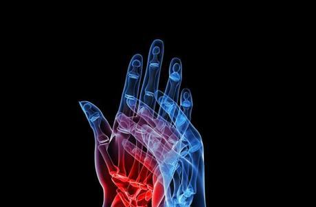 Los análisis clínicos en reumatología