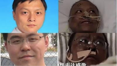 Dos médicos chinos se despiertan del coma por coronavirus, con la piel negra.