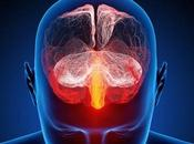 Descubren asociación entre disminución sustancia blanca cerebro esquizofrenia