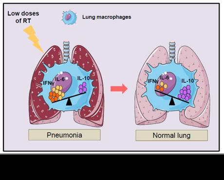 Radioterapia en tiempos del coronavirus (VI):  radioterapia a bajas dosis como tratamiento de la neumonía por COVID-19