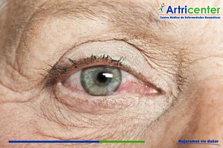 ¿Qué es el ojo seco o queratoconjuntivitis seca?