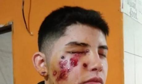 Pandemia de Violencia (I): Las Heridas (No Solo) Son Del Oficial