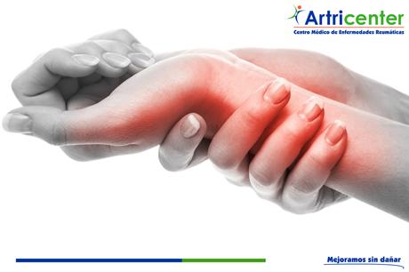 El café y la artritis.