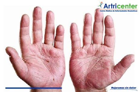 ¿Qué es la artritis psoriasica?