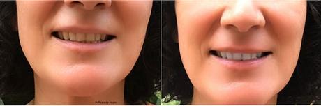 blanqueamiento_dental3