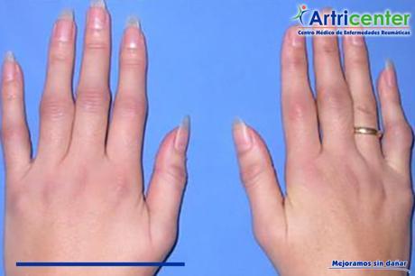 Manifestaciones articulares de la artritis psoriásica