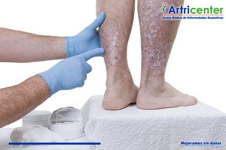 ¿La artritis psoriásica puede afectar otros órganos?