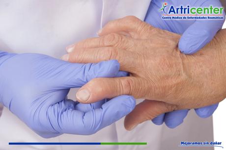 ¿Cómo puede evolucionar la artritis reumatoide?