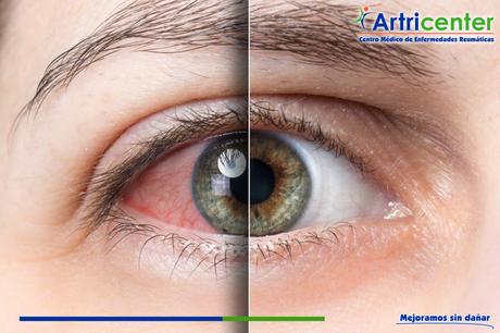 Los ojos y la enfermedad reumática.