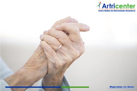 Sabías qué la artritis reumatoide….