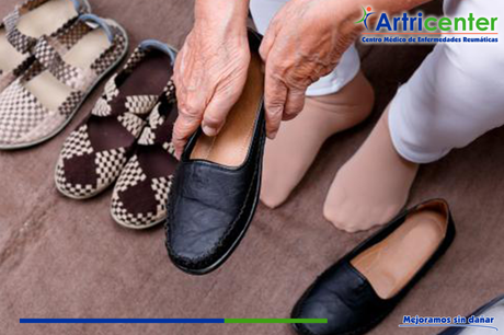 Artritis reumatoide y la protección articular