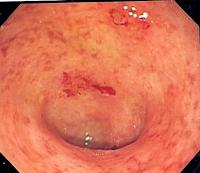 Nuevos Objetivos para Tratar la Colitis Ulcerosa