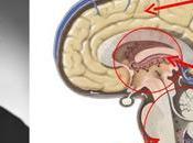 Tres cerebros