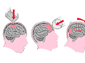 Efectos Trauma Nivel Celular Tisular Cerebro