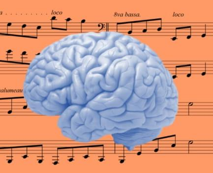 cerebro musical