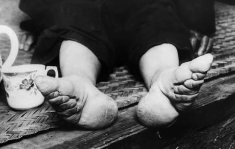 'Pie de loto': erotismo y mutilación