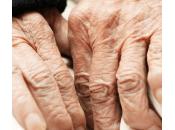 Cómo prevenir envejecimiento manos.