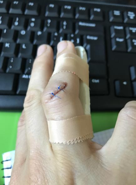 Una cicatriz más