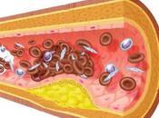 Estudio hiperlipidemia mixta
