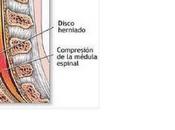 Hernia discal fisioterapia terve lucha canaria