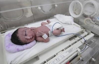 Impactante: Nació un bebé con dos caras