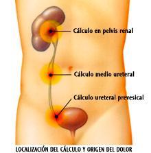 Los dolores en lo bajo del vientre y en los riñones la causa