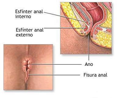 and anal fistula Crohns