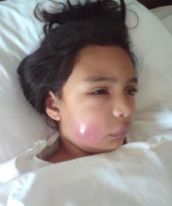 Infecciones cervicofaciales de origen dental