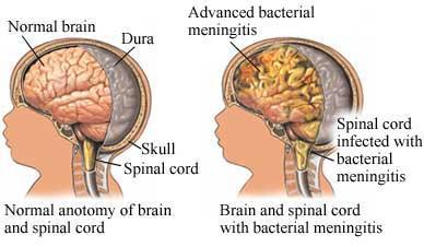 Diagnóstico de meningitis