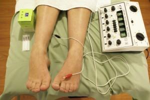 Las ventajas de la electroacupuntura